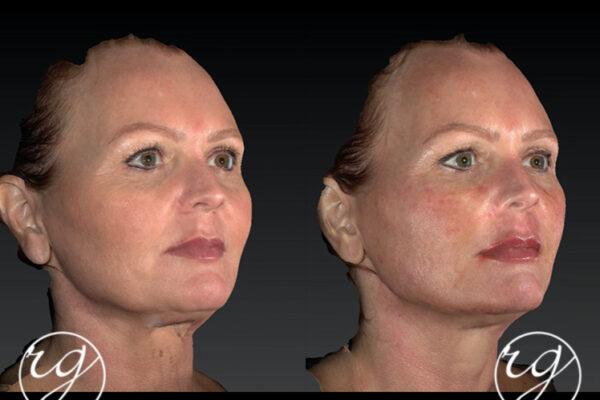 RG filler in lips, upper and lower face Before V After