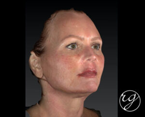 RG filler in lips, upper and lower face After