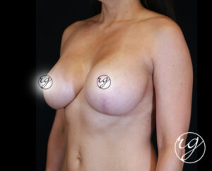 1-RG-BAM-Unilateral-Lift-w-Implants-3Quarter-After
