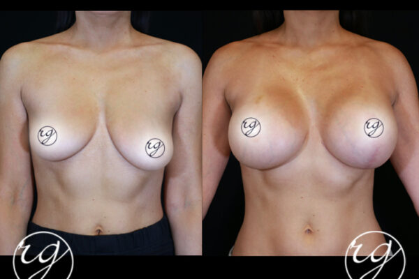 1-RG-BAM-Unilateral-Lift-w-Implants-Front