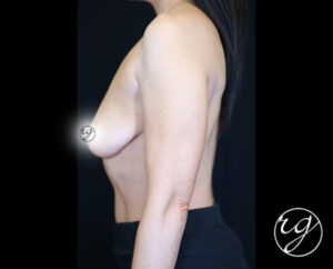 1-RG-BAM-Unilateral-Lift-w-Implants-Side-Before
