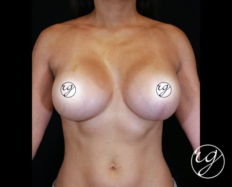 RG Breast Unilateral Lift After