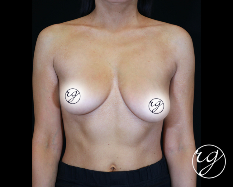 RG Breast Unilateral Lift Before