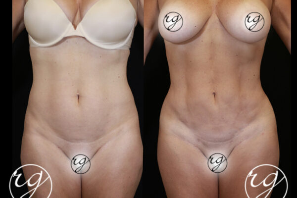 RG-BBL-360Lipo-4-Front-BeforeVAfter