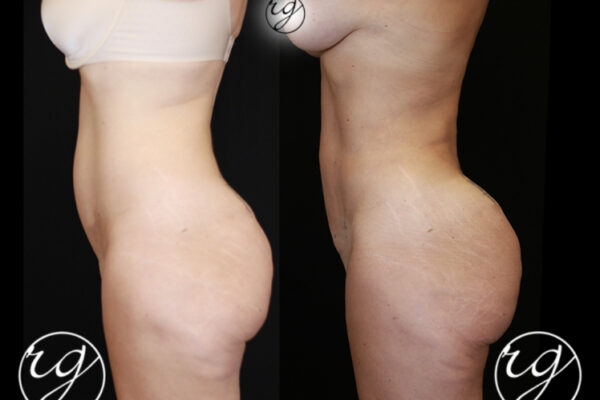 RG-BBL-360Lipo-4-Side-BeforeVAfter