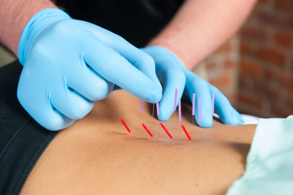 Back, gloves, dry needle