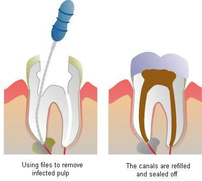 root-canal-2