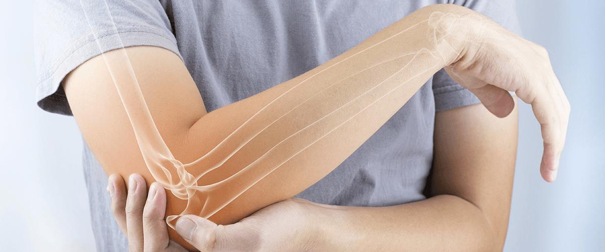 Pain Relief For Arthritis St. Louis, Creve Coeur, Ellisville, Saint Peters, Saint Charles & O'Fallon, MO
