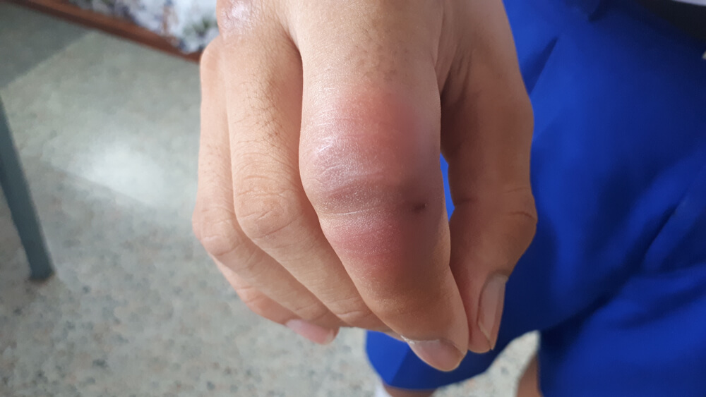 Why Are My Fingers Swollen?