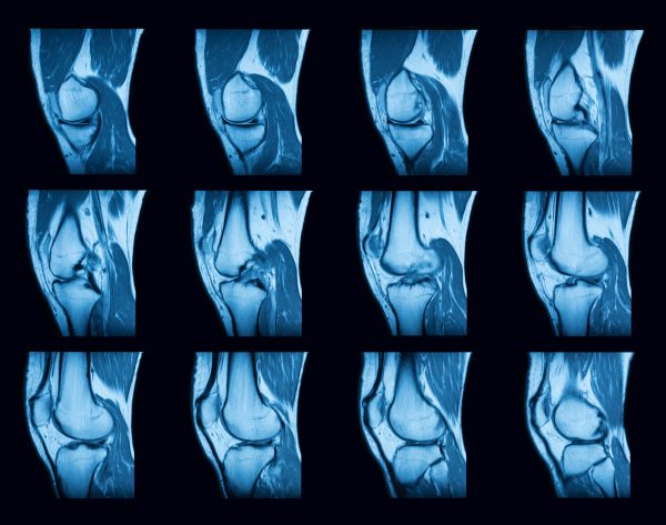 ST scan of knee