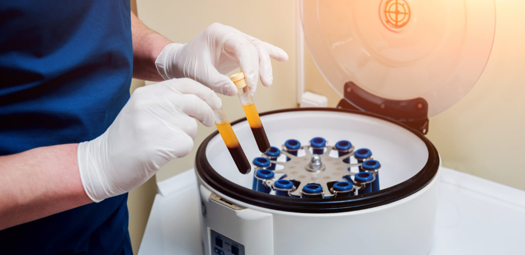 picture of centrifuge