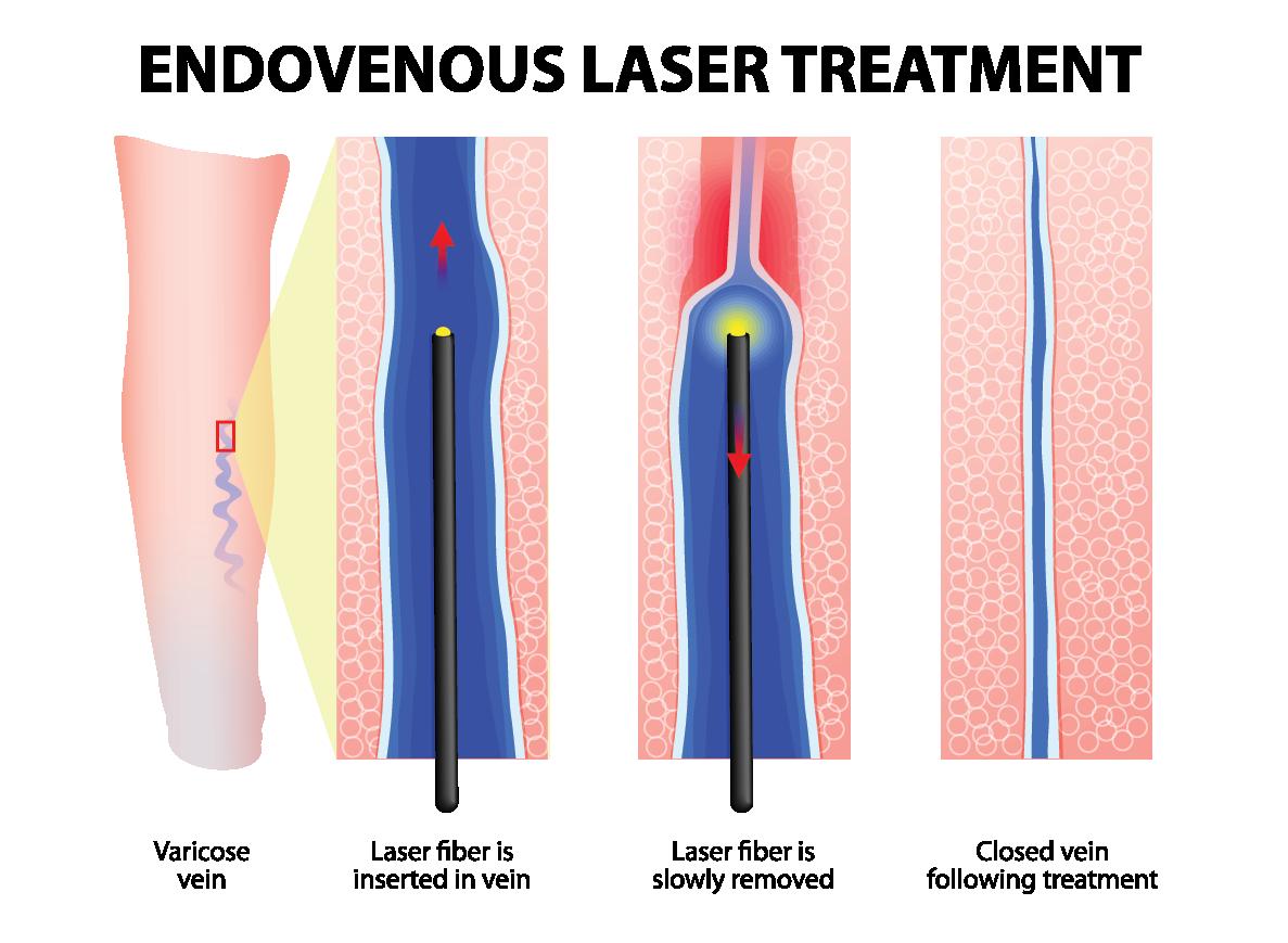 diagram of Varicose veins EVLT treatment