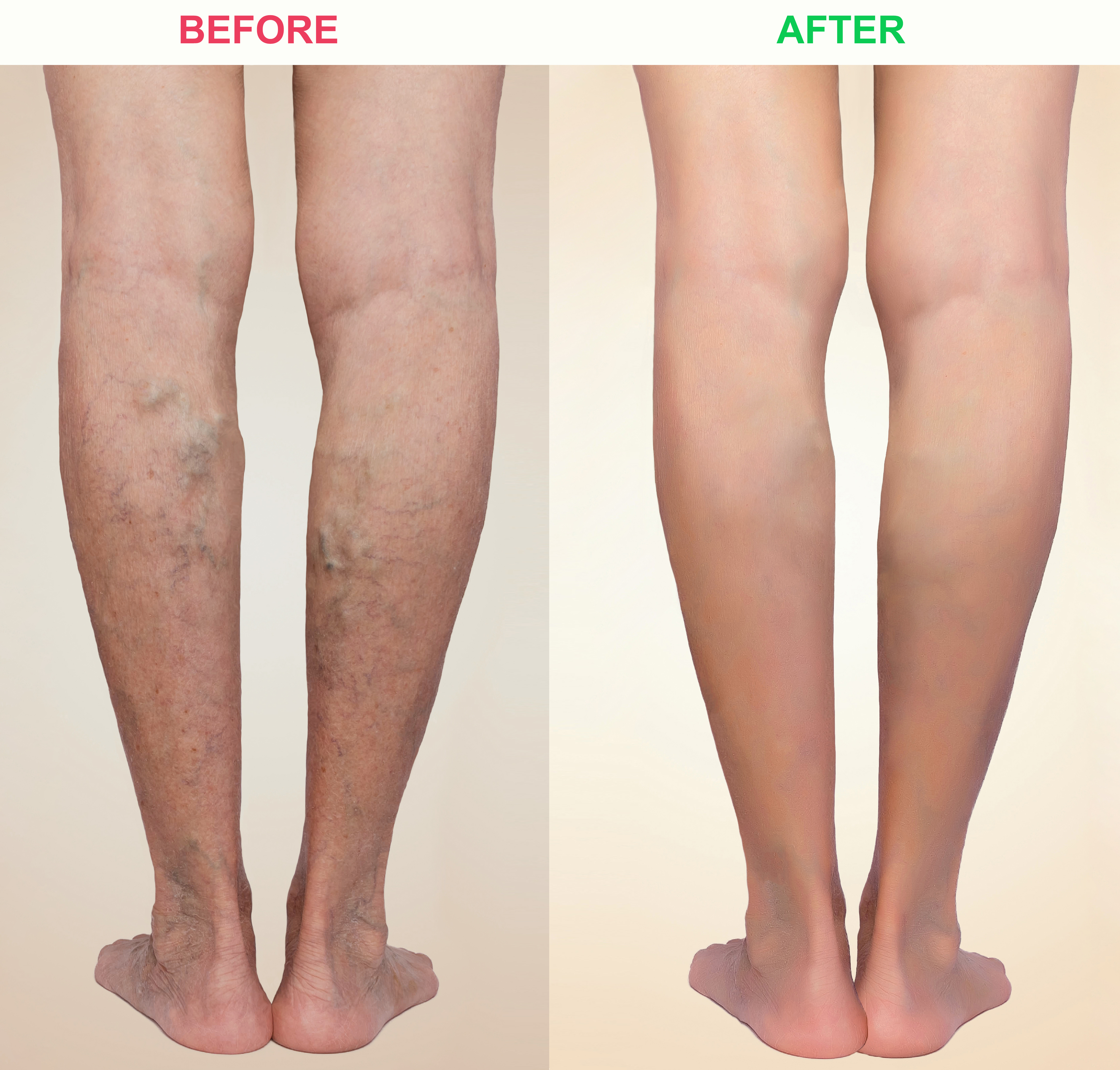 Varicos veins before and after picture