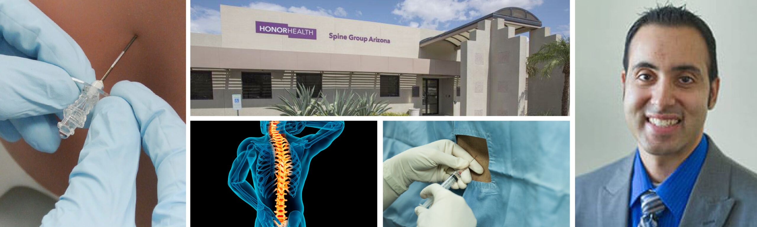 Spine Group Arizona is one of the best!