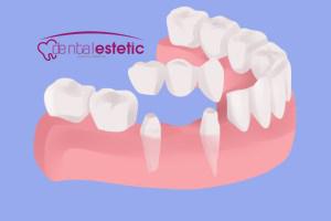 Tooth Bridges