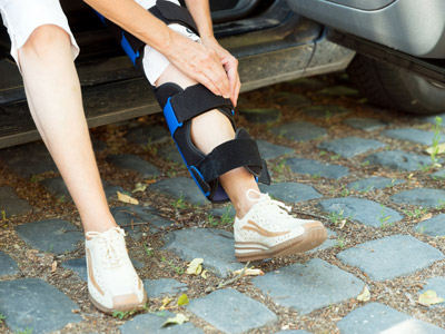 Leg Brace from car Accident