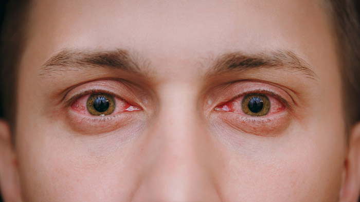 man with red eyes