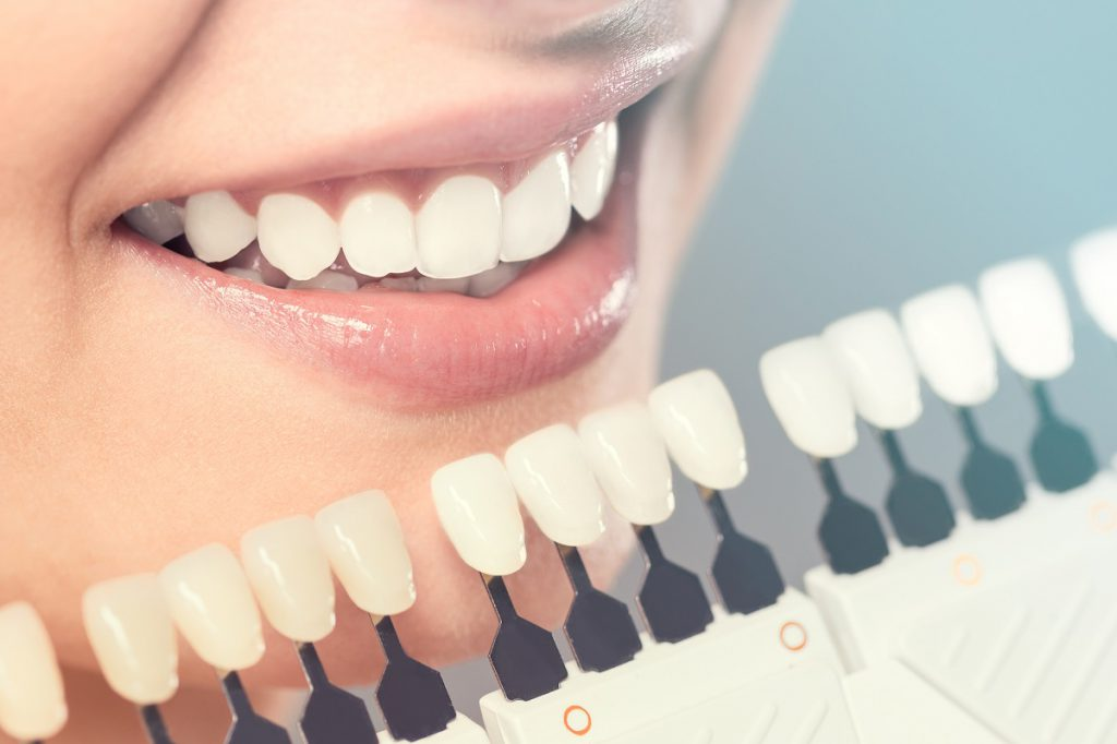 A dental patient having porcelain veneers compared to her teeth