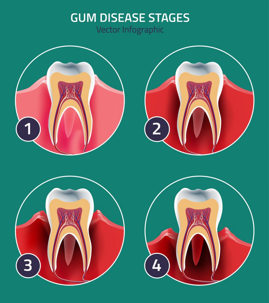 The 4 stages of gum disease