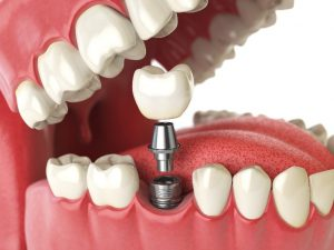 Infographic showing a dental implant
