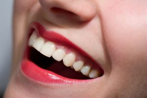 Woman smiling with tooth-colored fillings