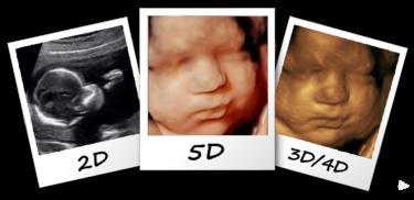 3d ultrasound vs 5d ultrasound michigan
