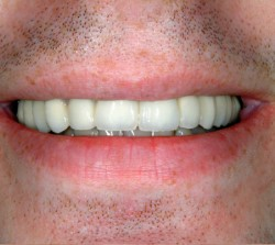 Crown After - Peoria Healthy Smiles