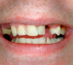 Crown Before - Peoria Healthy Smiles