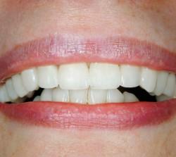 Veneers After - Peoria Healthy Smiles