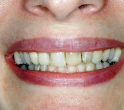 Veneers Before - Peoria Healthy Smiles