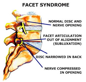 Facet Joint Syndrome - pinched nerve