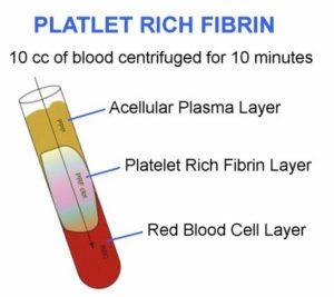 platelet rich fibrin