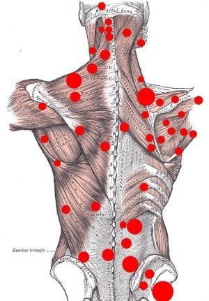 myofascial pain trigger points