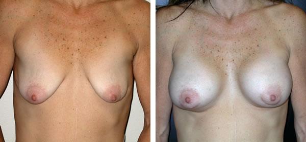 Breast_Augmentation_BarryHandlerMD_1