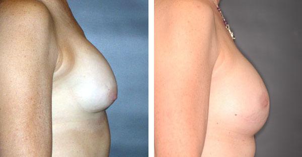 Breast_Augmentation_BarryHandlerMD_10