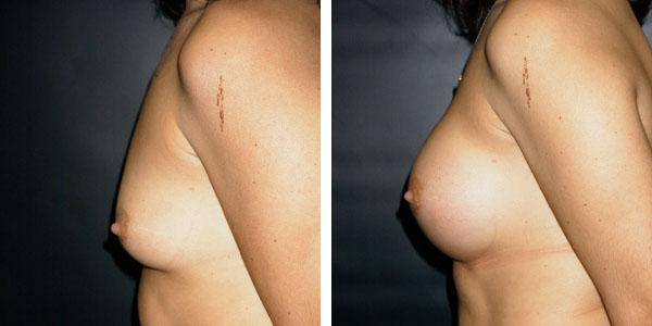 Breast_Augmentation_BarryHandlerMD_12