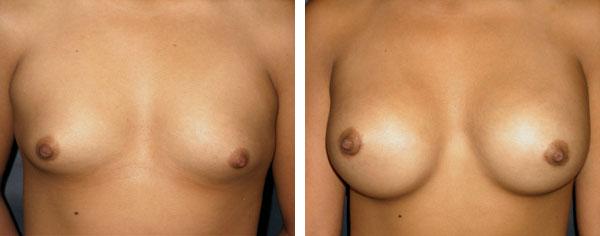 Breast_Augmentation_BarryHandlerMD_13