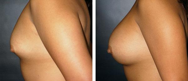 Breast_Augmentation_BarryHandlerMD_14