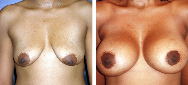 Breast_Augmentation_BarryHandlerMD_15