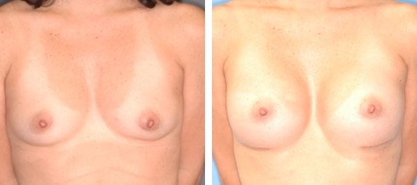 Breast_Augmentation_BarryHandlerMD_16