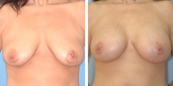 Breast_Augmentation_BarryHandlerMD_18
