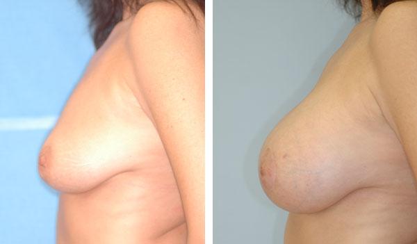 Breast_Augmentation_BarryHandlerMD_19