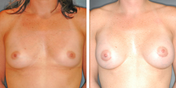 Breast_Augmentation_BarryHandlerMD_2