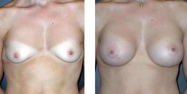 Breast_Augmentation_BarryHandlerMD_20