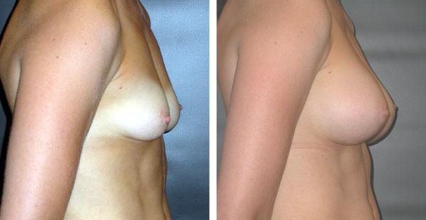 Breast_Augmentation_BarryHandlerMD_21
