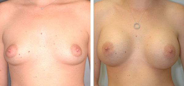Breast_Augmentation_BarryHandlerMD_22