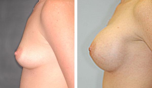 Breast_Augmentation_BarryHandlerMD_23