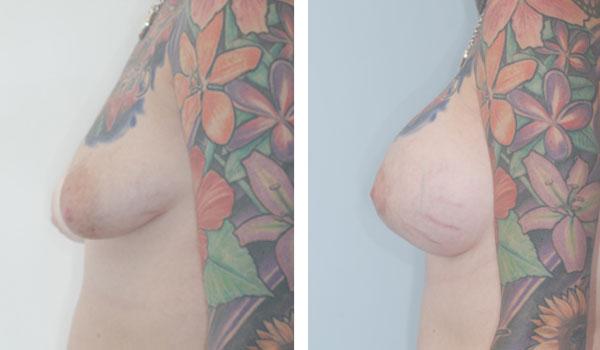 Breast_Augmentation_BarryHandlerMD_25