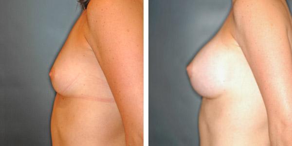 Breast_Augmentation_BarryHandlerMD_3