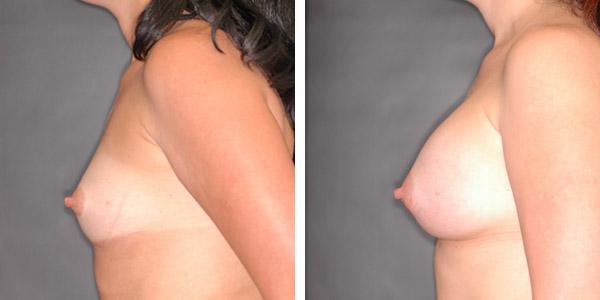 Breast_Augmentation_BarryHandlerMD_5